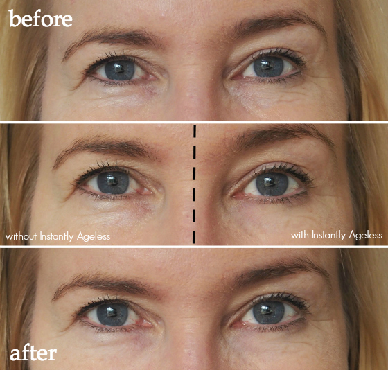 Instantly Ageless – What Is it and Does it Work?