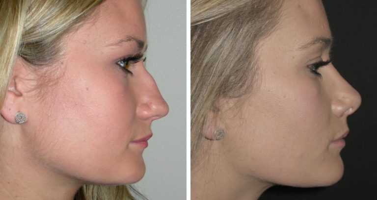 Dr. Adam Stein Raleigh, NC  Answers Your Rhinoplasty Questions