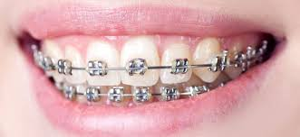 Kami Hoss – What Are The Pros And Cons Of Dental Braces?