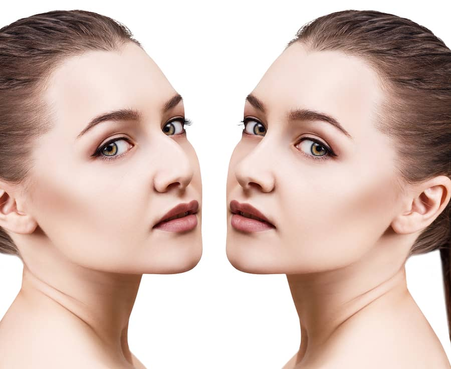 A Beginner's Guide to a Rhinoplasty Procedure